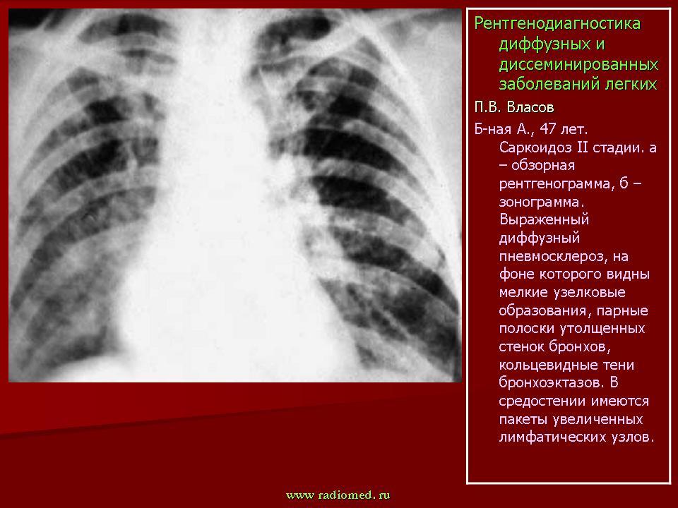 Пневмофиброз легких: причины и симптомы, лечение и профилактика