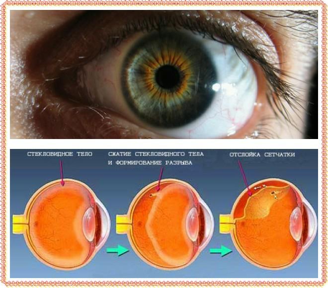 Дальтонизм – что это такое, причины и симптомы цветовой слепоты. дальтонизм: виды, признаки, диагностика, лечение дальтоник симптомы