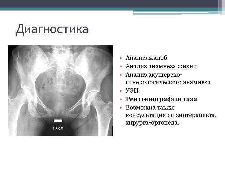 Симфизит при беременности (32 фото): симптомы и лечение, что это такое, признаки расхождения костей таза у беременных, бандаж и роды