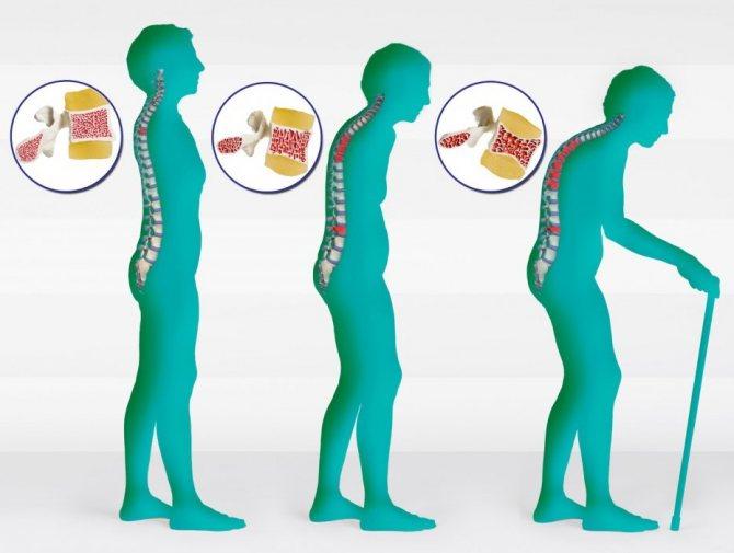 Остеопороз костей — что это за болезнь, ее признаки и лечение