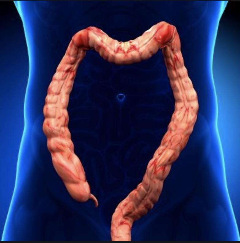 Язвенный колит кишечника: что это такое, симптомы и лечение, диета