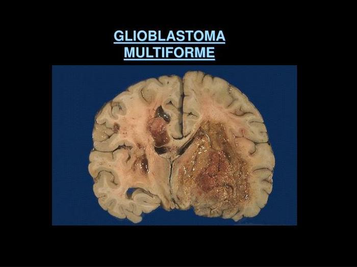 Глиобластома головного мозга: что это, симптомы, лечение, прогноз жизни