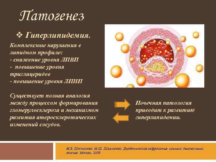 Гиперлипидемия - лечение, симптомы, типы гиперлипидемии