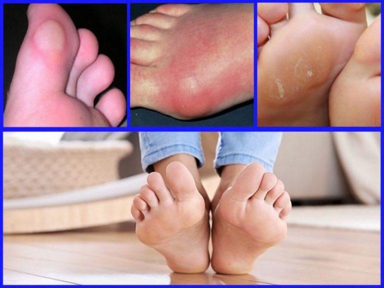 Шипига на стопе: причины патологии и лечение в домашних условиях