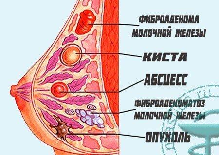 Что такое фиброма | клиника leomed
