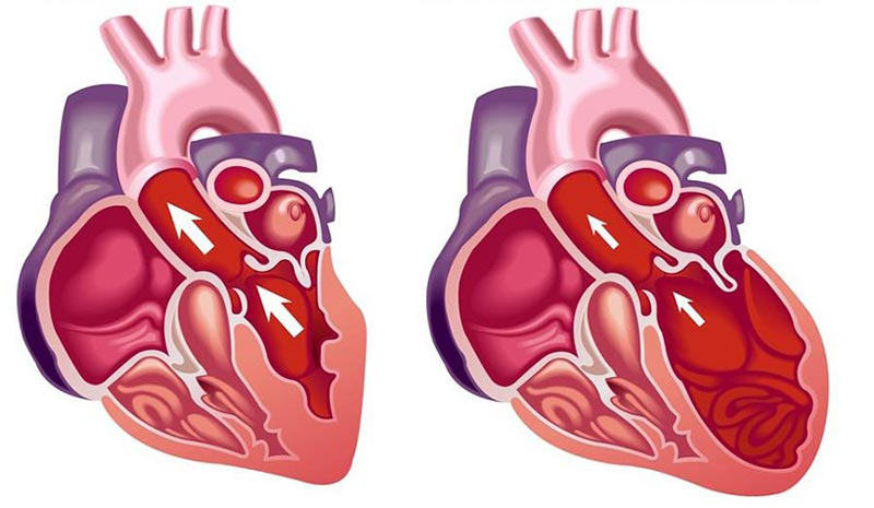 Почему возникает кардиомегалия и как её лечить - о составе крови!