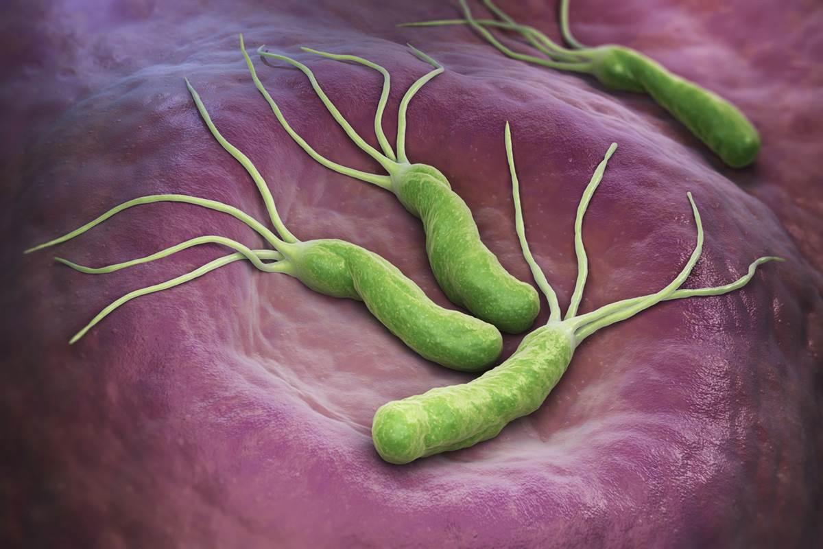 Хеликобактер пилори - что это за бактерия и схема лечения народными средствами и антибиотиками