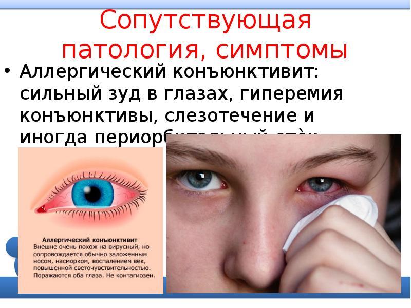 Как отличить конъюнктивит: виды заболевания, его лечение и профилактика — глаза эксперт