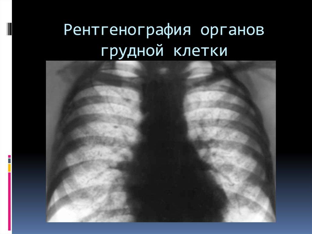 Комок в груди: что это может быть?