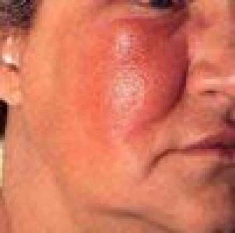 Рожа: мифы о целебной красной тряпке до сих пор актуальны