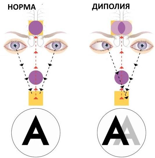 Хориоретинит глаза: лечение, симптомы, диагностика, причины и осложнения