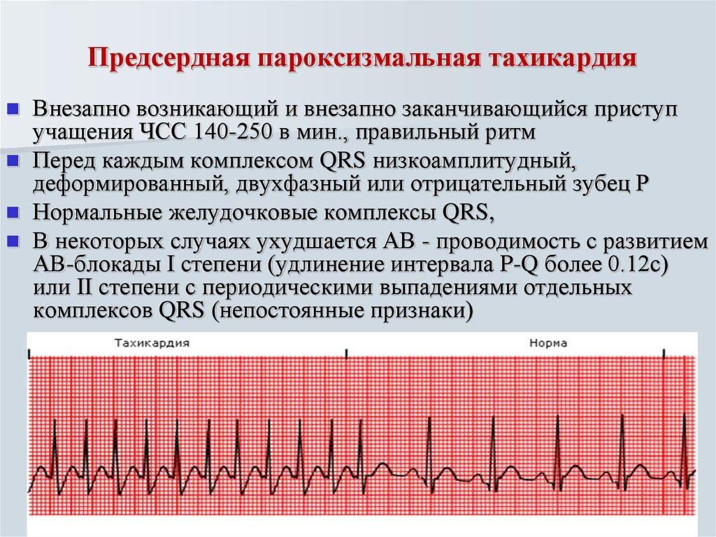 Рча сердца: что это такое, отзывы кардиологов и пациентов
