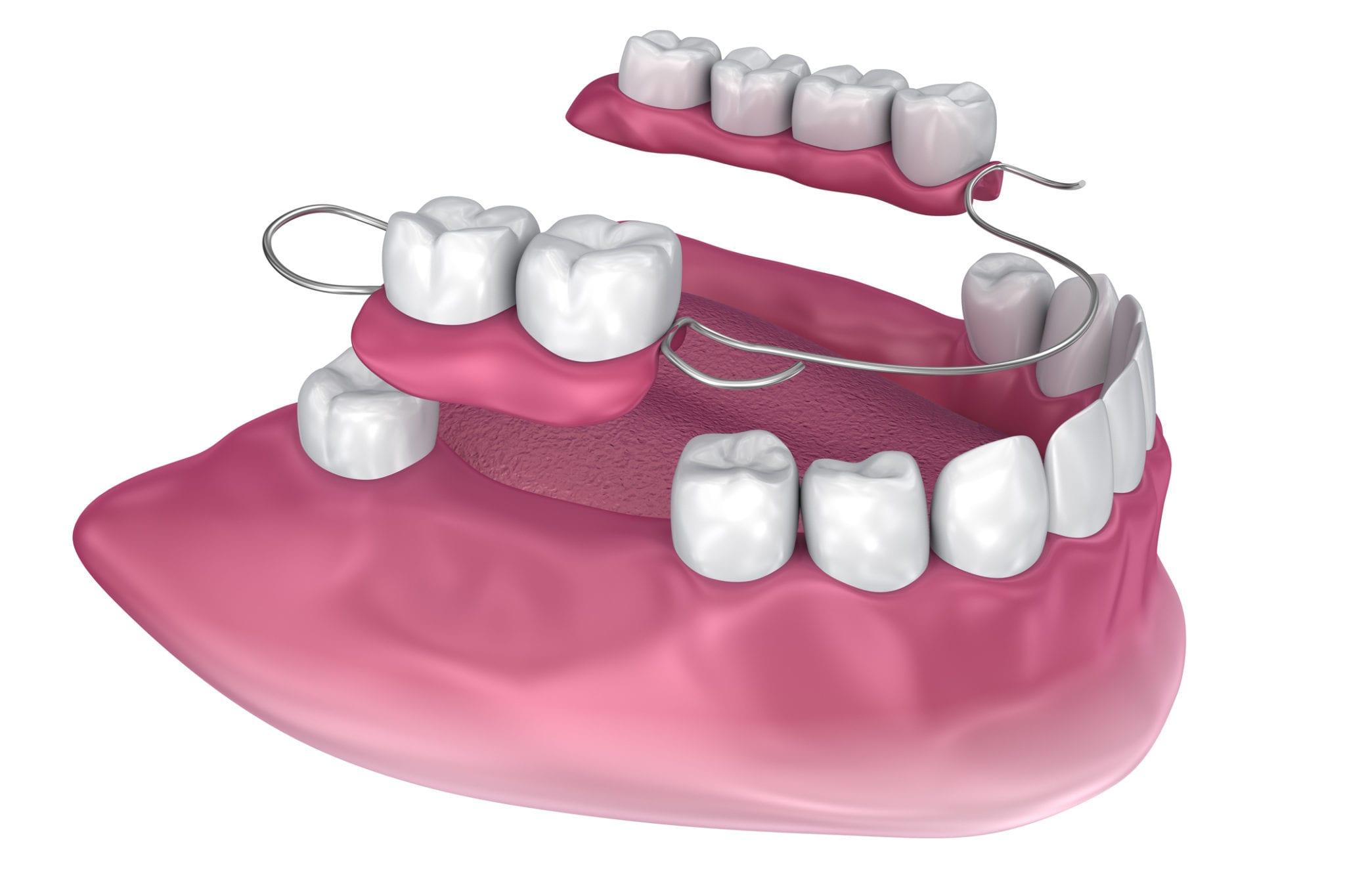 В сумке – тушь, расческа, …челюсть, или все о зубном протезировании