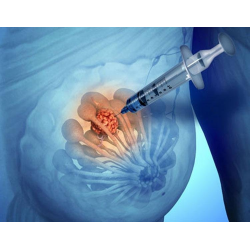 Пункция - что это за диагностика и как делают пункцию сустава