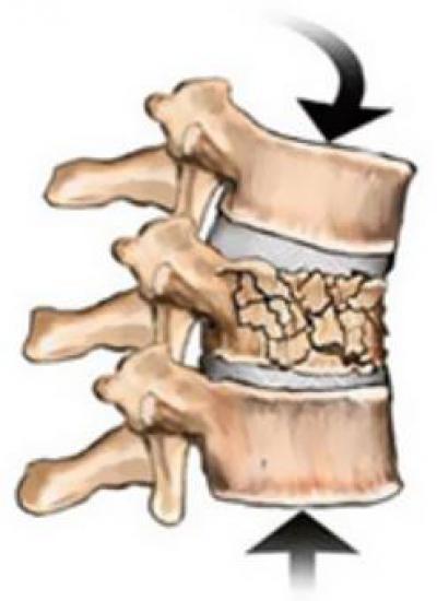 Компрессионный перелом позвоночника – причины и лечение всех степеней тяжести травмы