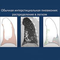Интерстициальная пневмония у взрослых: что это такое, код по мкб-10 и лечение, чем отличается идиопатическая и десквамативная форма от обычной и острой? | fok-zdorovie.ru