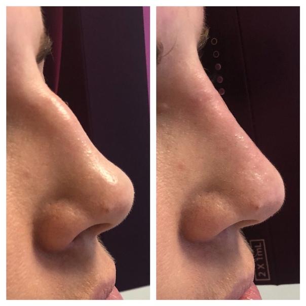Эстетическая ринопластика - цена операции | ринопластика носа