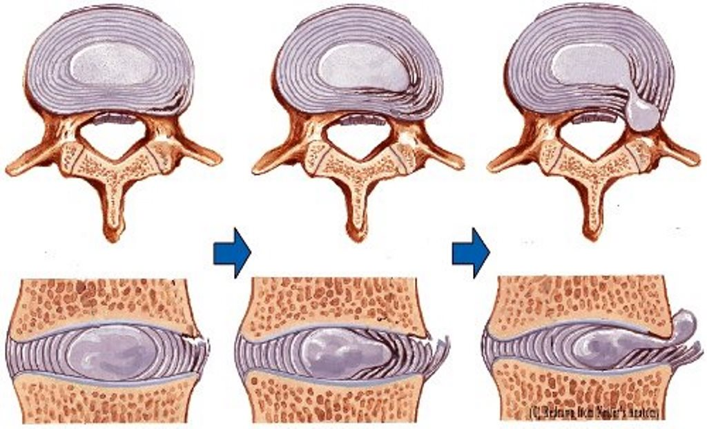 Межпозвоночная грыжа грудного отдела позвоночника: симптомы и лечение