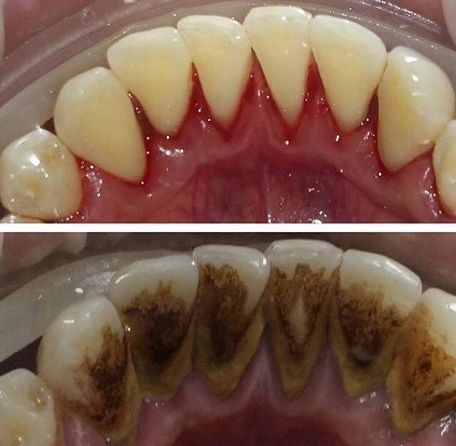 Как убрать зубной камень дома без вреда для эмали