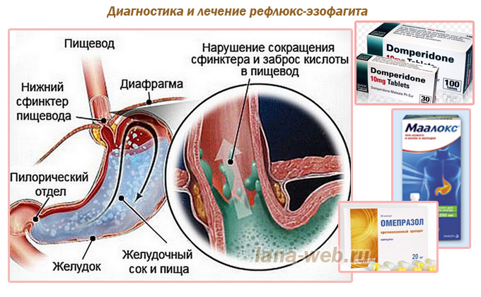 Диета при рефлюкс эзофагите   компетентно о здоровье на ilive