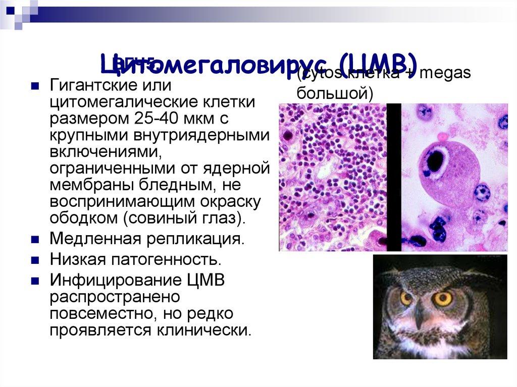 Цитомегаловирус igm положительный: что это такое?