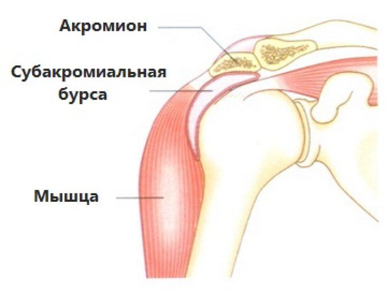 Бурсит плечевого сустава: симптомы, лечение в домашних условиях
