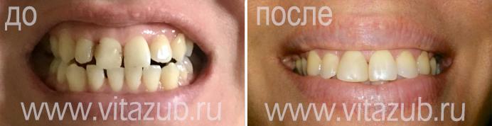 Световая пломба или химическая: что выбрать?. лечение зубов в тушино на свободе