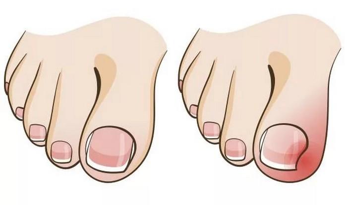Как стричь вросший ноготь на ноге в домашних условиях