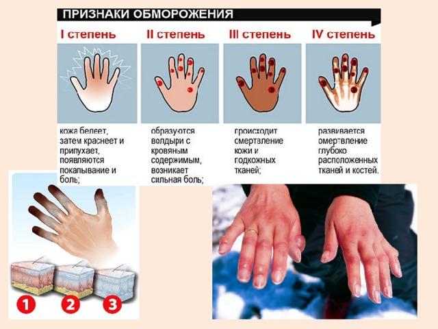 Отморожение – признаки, степени, первая помощь