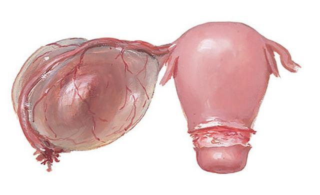 Киста яичника на узи – что делать, как лечить? эндометриоидная, дермоидная, параовариальная, фолликулярная киста яичника