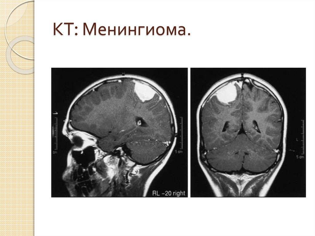 Причины появления менингиомы головного мозга: ее диагностика и лечение