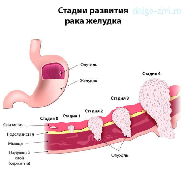 Что предлагает медицина для борьбы с helicobacter pylori