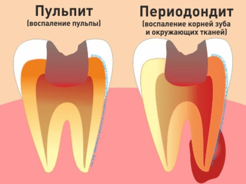 Пульпит: фото, симптомы и методы лечения пульпита зуба