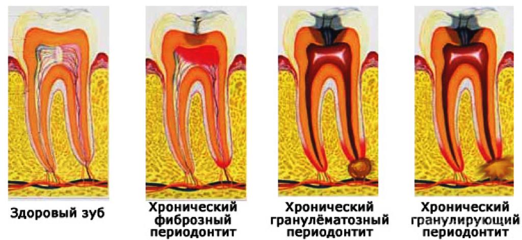 Гранулёма зуба: лечение, симптомы, фото, опасность, причины и снятие боли