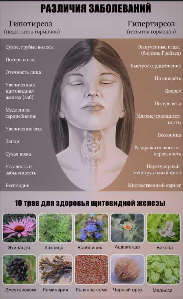 Где находится щитовидная железа? симптомы заболевания щитовидной железы, лечение