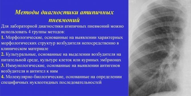 Атипичная пневмония у взрослых и детей: симптомы, лечение pulmono.ru атипичная пневмония у взрослых и детей: симптомы, лечение