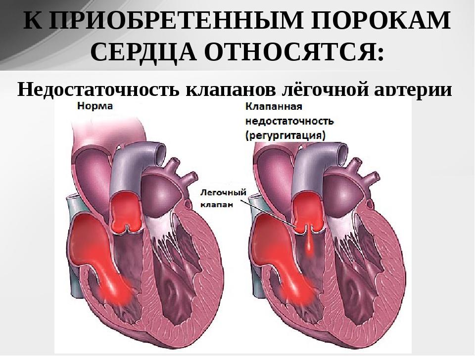 Предупреждаем опасность: симптомы и признаки врожденных и приобретенных пороков сердца, эффективные способы диагностики