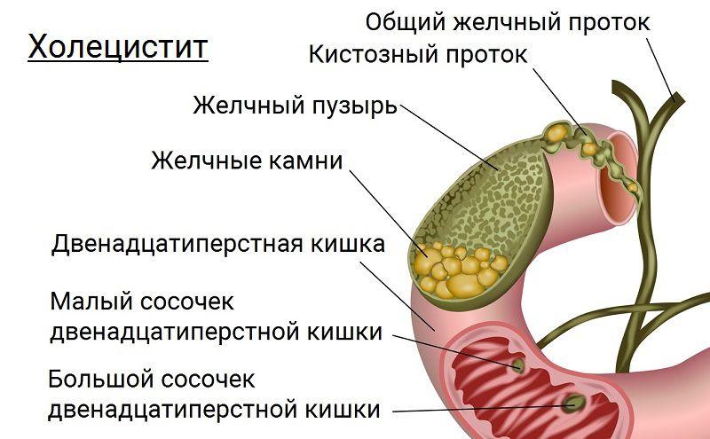Хронический холецистит: симптомы и лечение