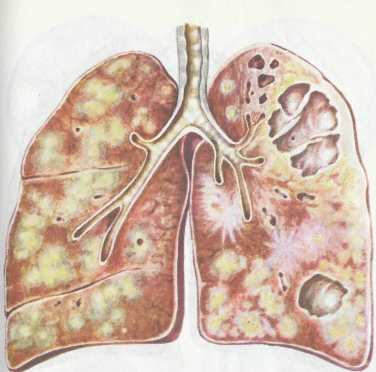 Какие формы и виды туберкулеза легких существуют: классификация и стадии | prof-medstail.ru