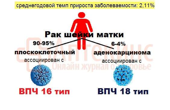 Что такое вирус папилломы человека