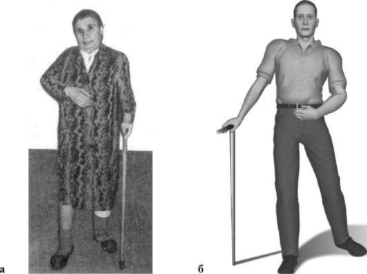 Левосторонний гемипарез: код по мкб-10, спастический гемипарез, после инсульта, дцп, комплекс упражнений, лечение и прогноз у детей - doktor-ok.com