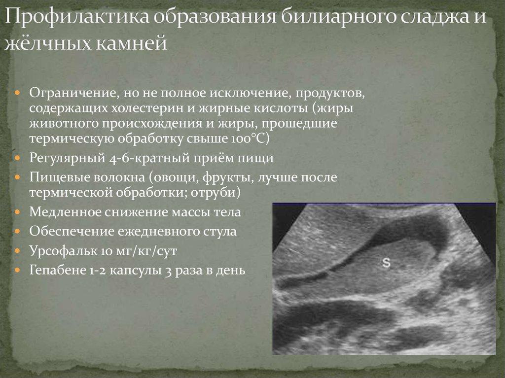 Билиарный сладж: клиническая картина и схема лечения патологии