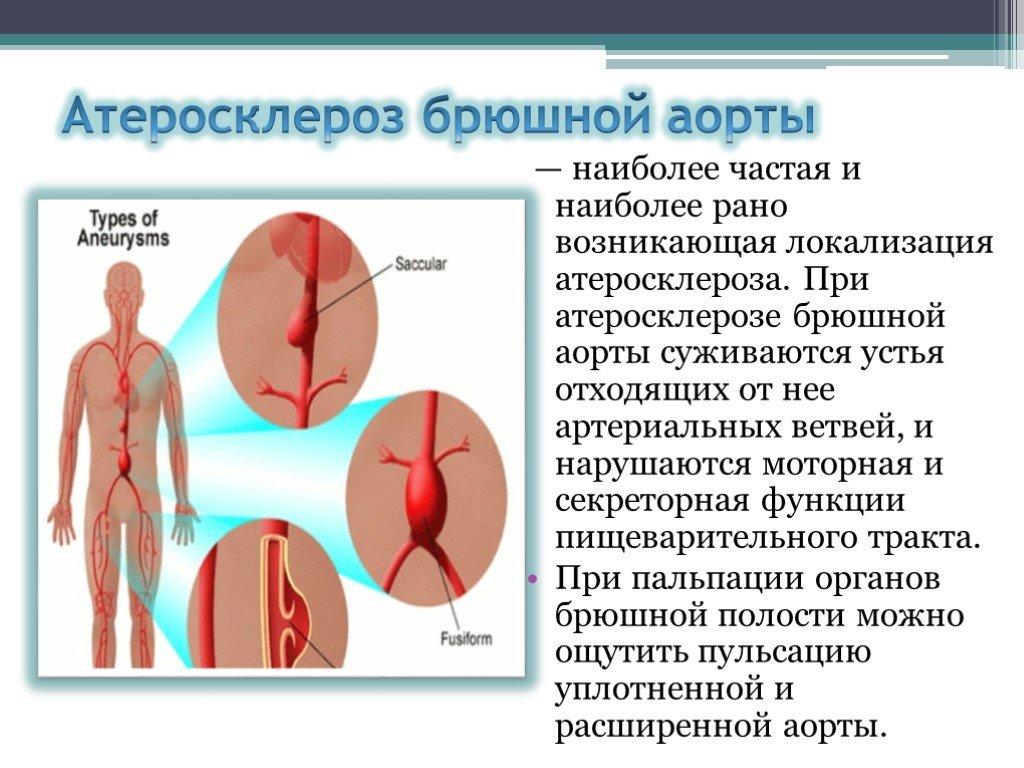 Атеросклероз аорты: причины, симптомы, как лечить