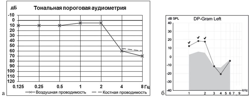 Аудиограмма и аудиометрия