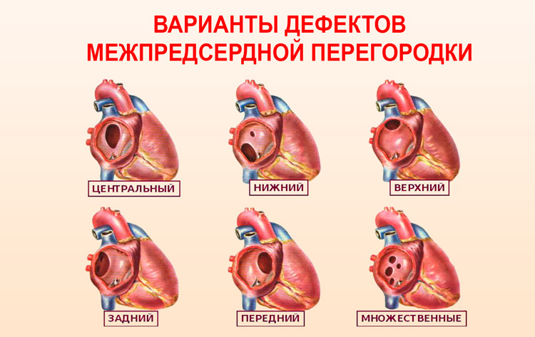 Приобретенные пороки сердца: причины и методы лечения