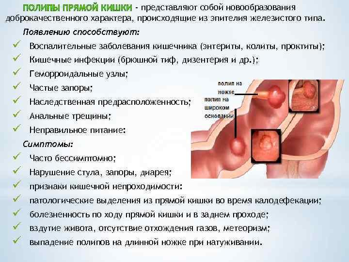 Полипы в матке: причины, симптомы, лечение без операции | компетентно о здоровье на ilive