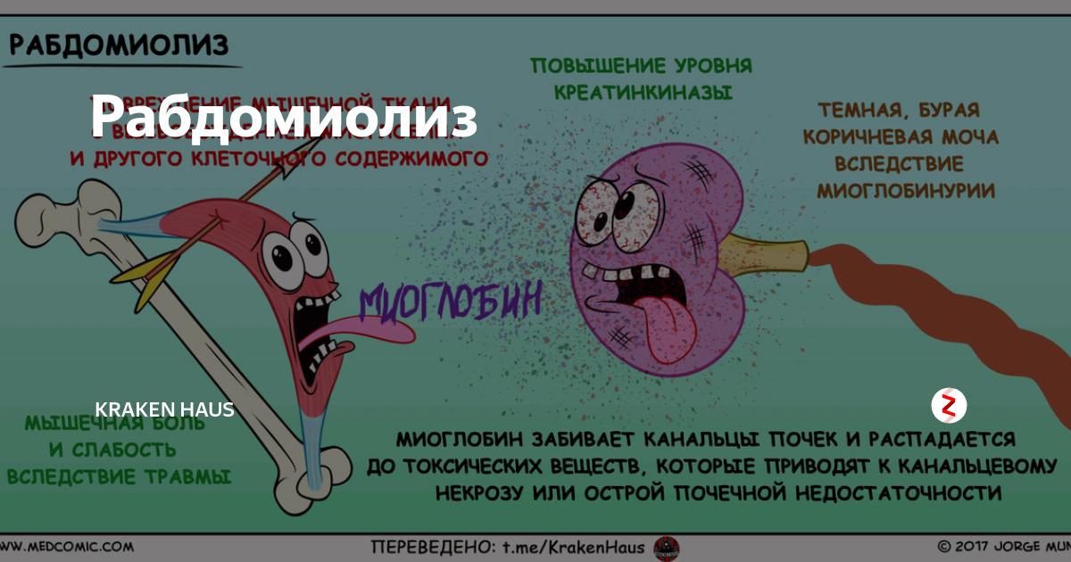 Рабдомиолиз: причины, симптомы, диагностика, лечение - умный доктор