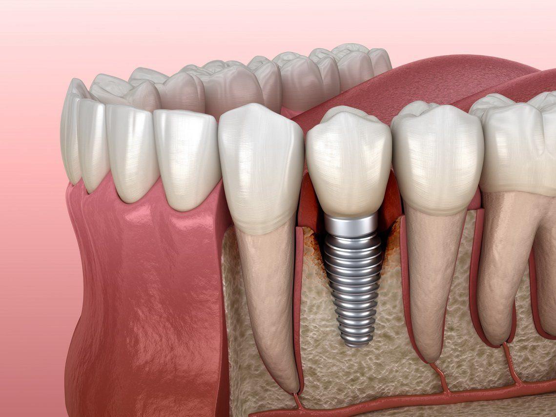Какие виды зубных имплантов бывают