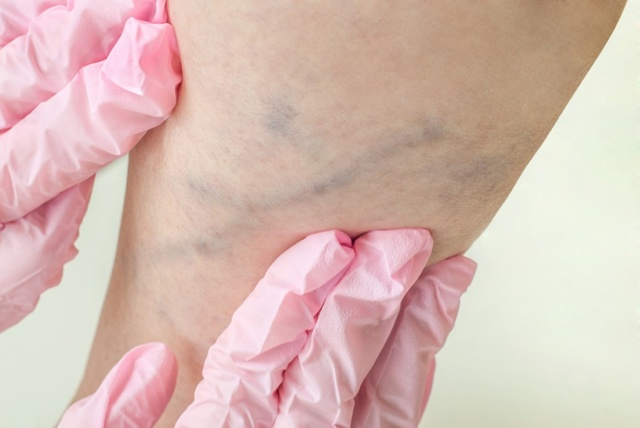 Симптомы и лечение тромбоза - medside.ru