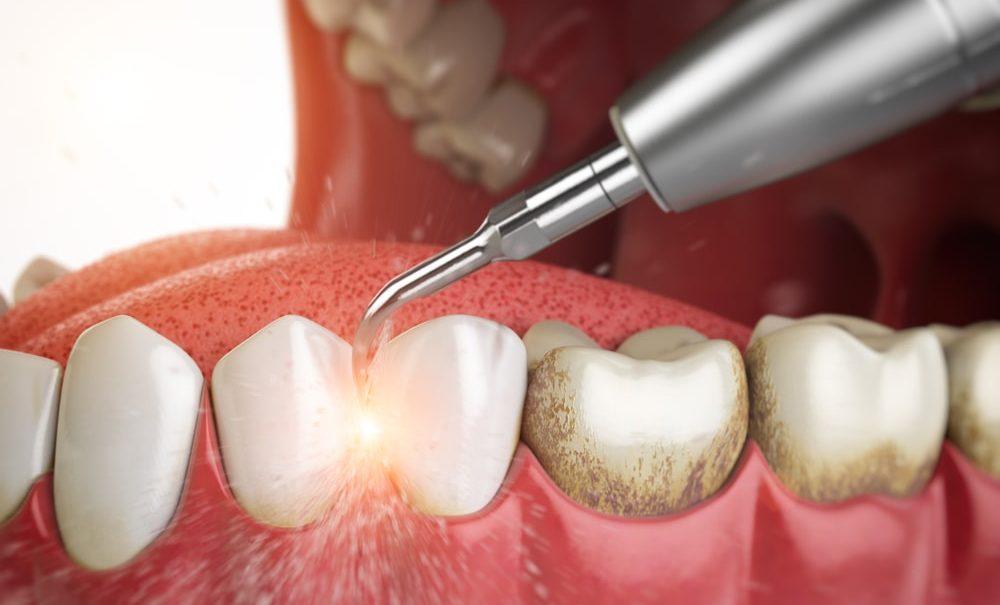 Причины возникновения зубного камня